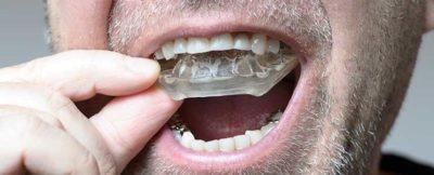 West 17th Avenue Dental   Bruxism Nightguard