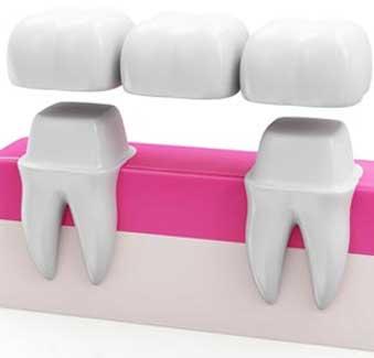 West 17th Avenue Dental | Dental Bridges
