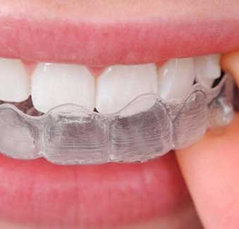 West 17th Avenue Dental | Invisalign Braces