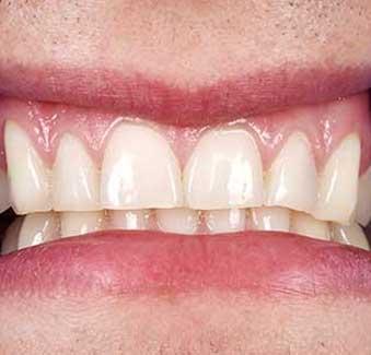 West 17th Avenue Dental | Pinhole Gum Surgery